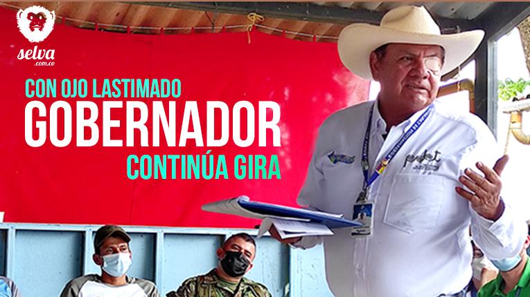 Gobernador Arnulfo Gasca Trujillo, pisó una rama, la rama saltó impactando el ojo izquierdo. Fotografía Kamilo Ardila Zárate|